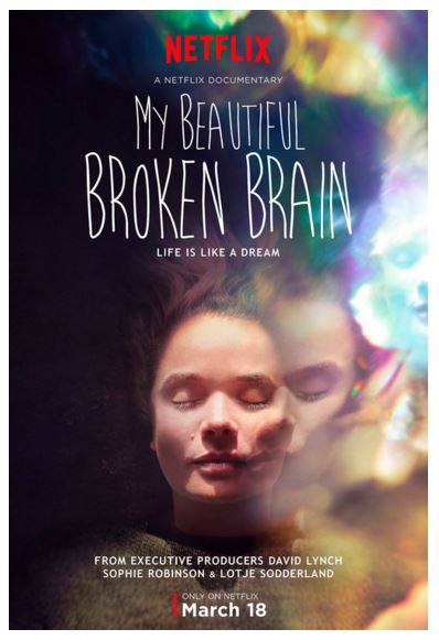 beautiful broken brain